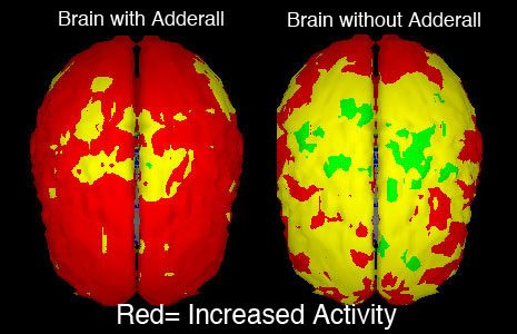 adderall-brain-side-effects